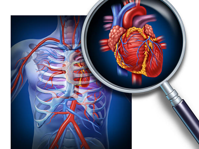 """Welcome to the integrated lecture """"Cardiomegaly syndrome"""""""
